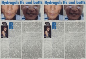 Hydrogel Ifs and Butts